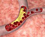 Атеросклероз судин головного мозку