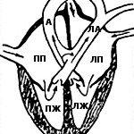 Дефект аортолегочного перегородки