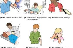 Причини зараження гепатитом B